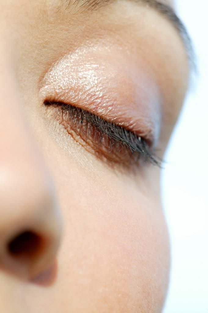 Cirugía oculoplástica