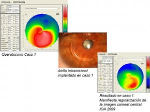 A case of keratoconus treated with intracorneal rings