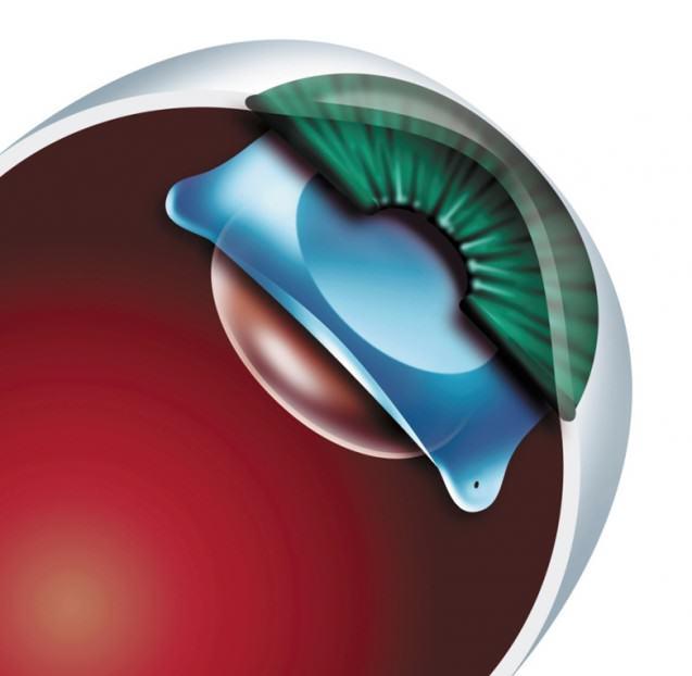 Investigación IO Amigó: el centrado de las lentes intraoculares