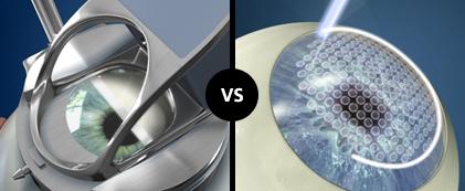 LASIK convencional con cuchilla versus FemtoLASIK o LASIK todo láser.