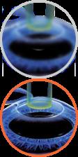 Miopía, hipermetropía, astigmatismo
