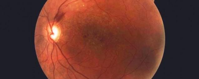 «El Glaucoma es tan silencioso que te hace dudar de su propia existencia»