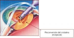 Lens surgery (1)