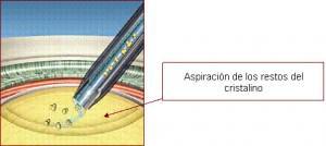 Lens surgery (2)