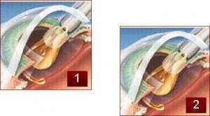 Implantación de lente