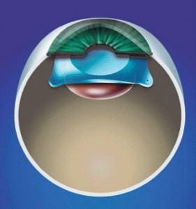 Phakic lens