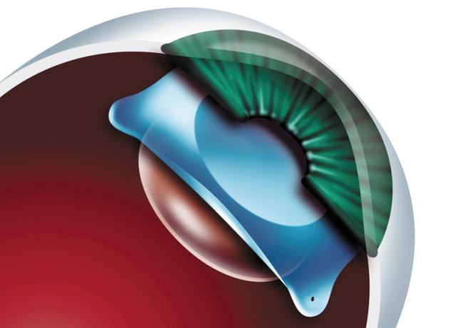 Phakic intraocular lens (ICL and toric ICL)