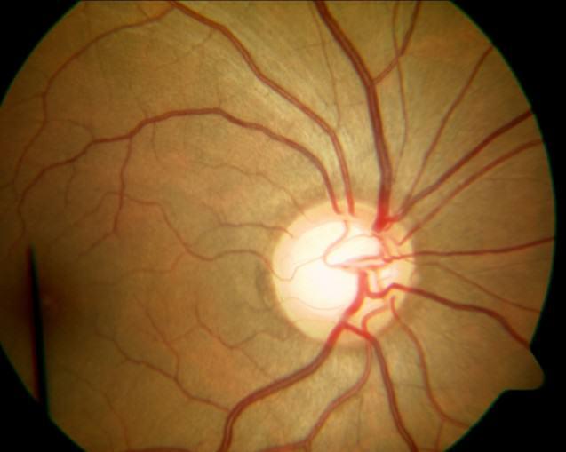 Primeros síntomas del glaucoma