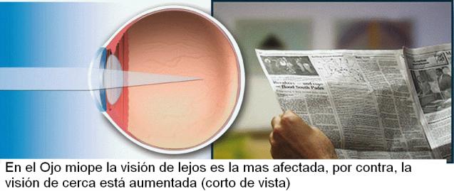 La miopía y la cirugía refractiva con láser