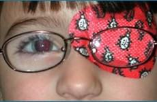 Patch and strabismus