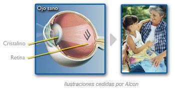 Una catarata es el enturbiamiento de la lente natural del ojo o cristalino.