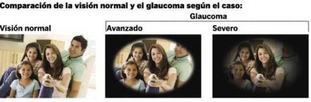 ¿Cuáles son los síntomas del Glaucoma?