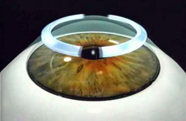 ¿Qué resultados visuales se obtienen con los anillos intracorneales?