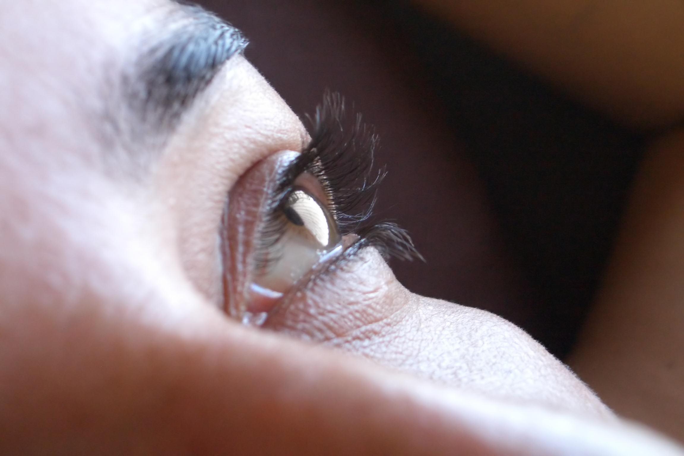 Eyelid and lacrimal