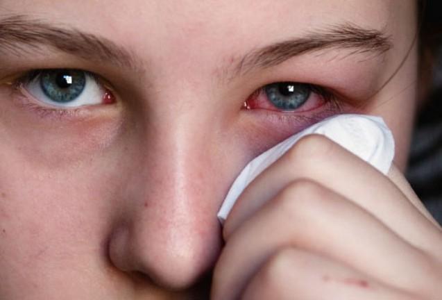 La primavera trae consigo las alergias y con ellas, un riesgo para tus ojos