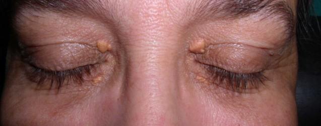 Los xantelasmas pueden ocultar enfermedades silenciosas