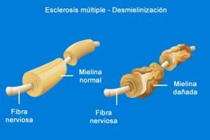 esclerosis-multiple
